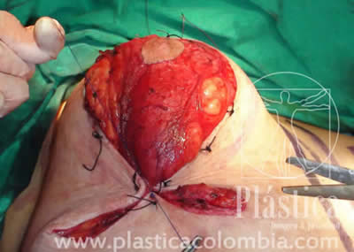 Areola Pezón Mamoplastia
