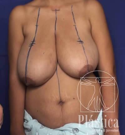 Mamoplastia marcación