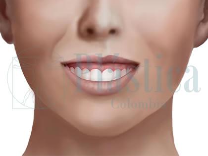 Corrección sonrisa gingival