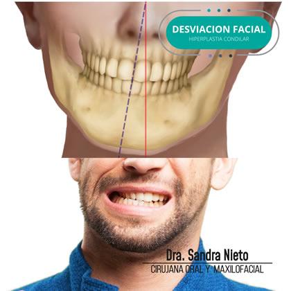 Desviación Facial