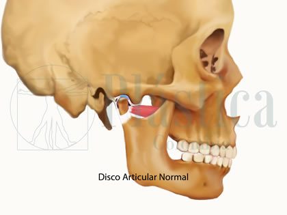 disco articular normal