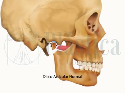 disco articular normal