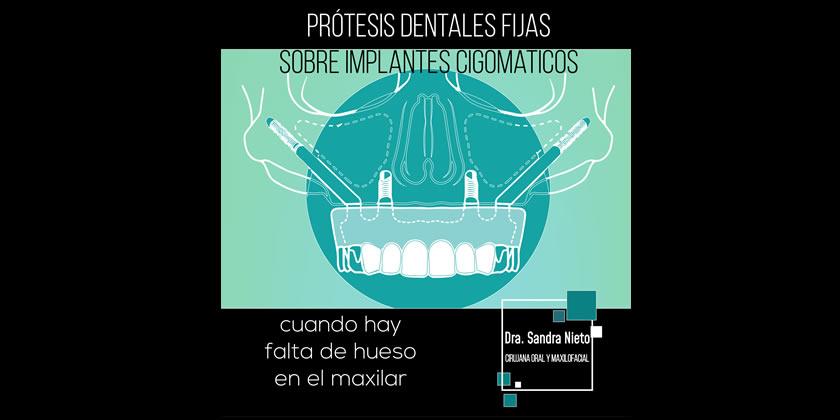 Implante dental cuado no hay hueso maxilar