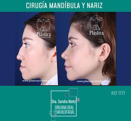 Foto Cirugía Mandíbula