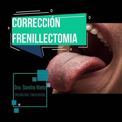 frenillectomia
