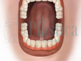 Frenillectomía lingual con suturas
