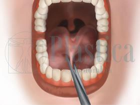 Frenillectomía lingual corte