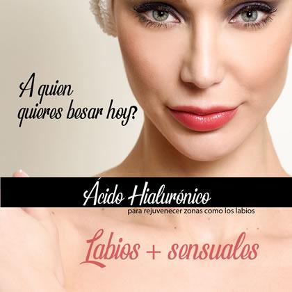 hyaluronic filler labios