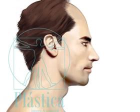 Ilustración trasplante pelo