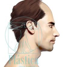 Ilustración trasplante capilar