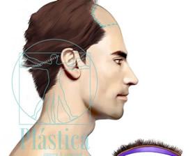 Ilustración implante cabello