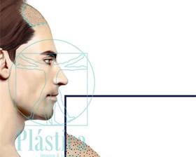 Ilustración implante pelo
