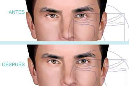 Cirugía de párpados superiores masculino