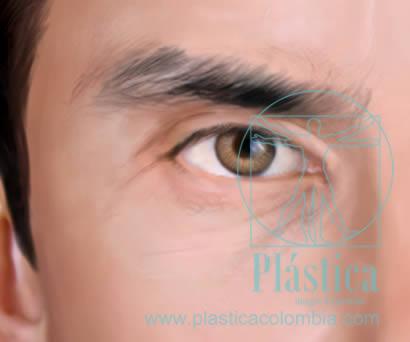 ilustración arrugas alrededor ojos