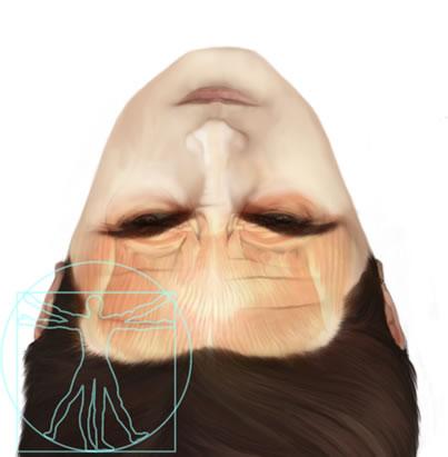 Ilustración frontoplastia pre