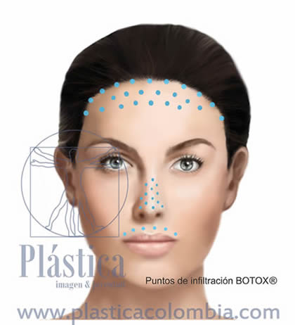 Ilustración hiperhidrosis facial