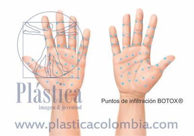 Ilustración Hiperhidrosis manos