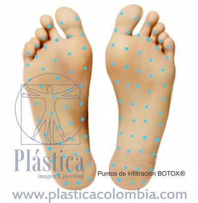Ilustración Hiperhidrosis pies