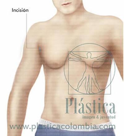 Insición ginecomastia