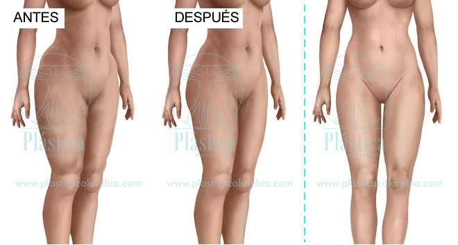 Ilustración Lifting muslos antes y después
