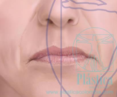 ilustración líneas arrugas boca