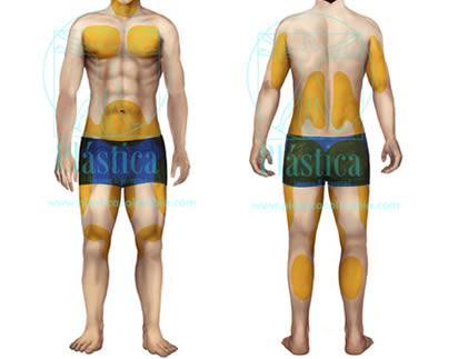Ilustración Liposucción corporal hombre