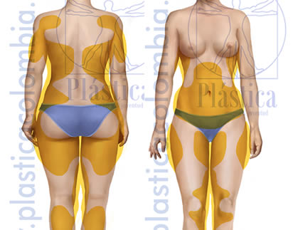 Ilustración liposucción corporal mujer