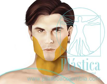 Ilustración liposucción facial hombre