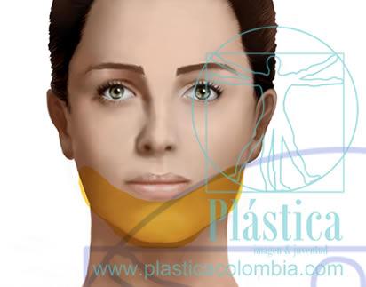Ilustración liposucción facial mujer