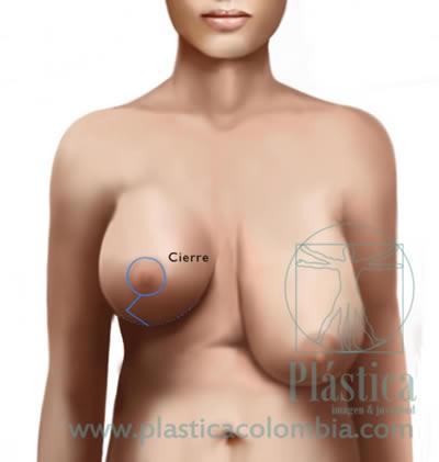 Cierre reducción senos