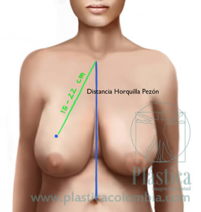 Ilustración Mamoplastia distancia pezón