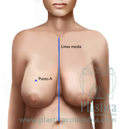 Ilustración Mamoplastia Reductiva líneas procedimiento