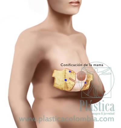 Pezón Mamoplastia