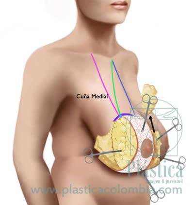 Mamoplastia reducción medio