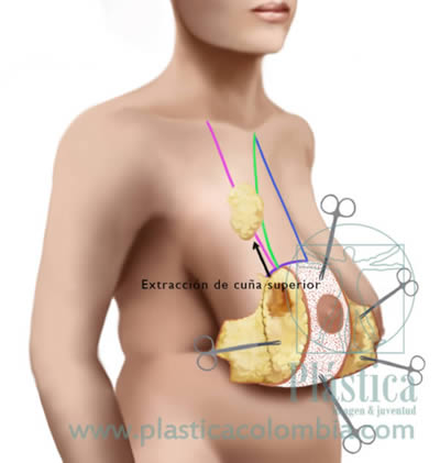 Mamoplastia superior