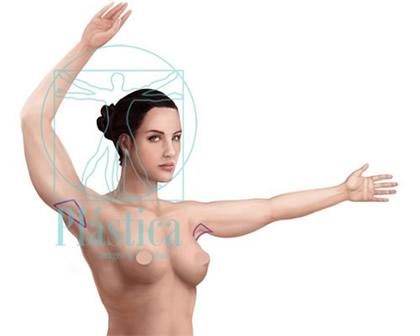 Lifting brazos Exceso de piel tipo MEDIO