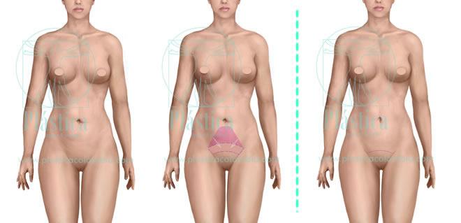 Ilustración MiniAbdominoplastia proceso
