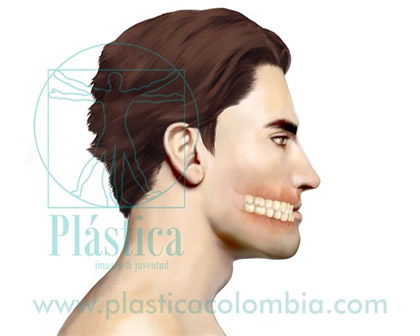 Clase mordida maxilofacial