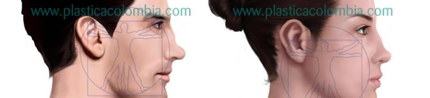 Ilustración Nariz depresión dorso nasal