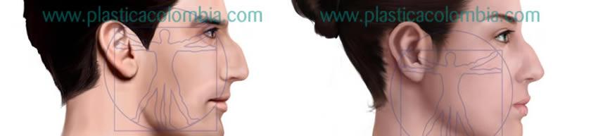 Ilustración Nariz con giba nasal