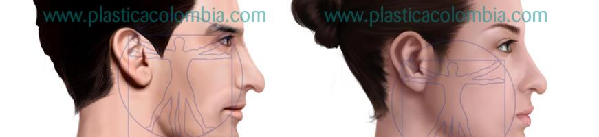Ilustración Nariz con punta nasal caída