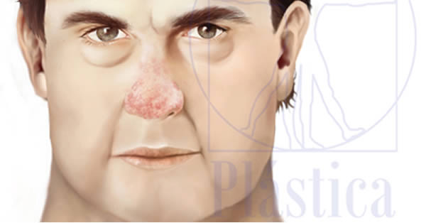 Ilustración nariz rinofima