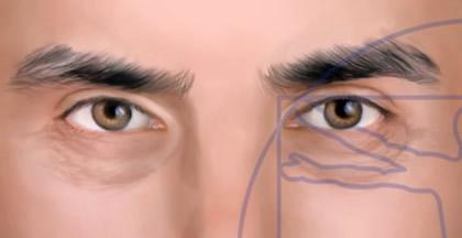 Ojos Hombre con Ojeras