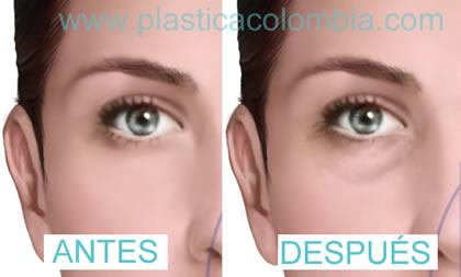 párpado antes y después de blefaroplastia