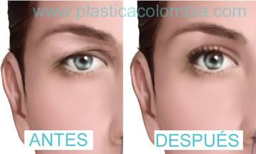 párpado antes y después blefaroplastia