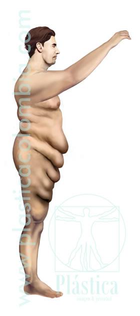 Ilustración Cirugía Postbariátrica