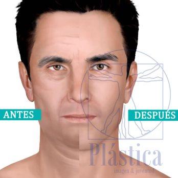 Perfilamiento facial hombre