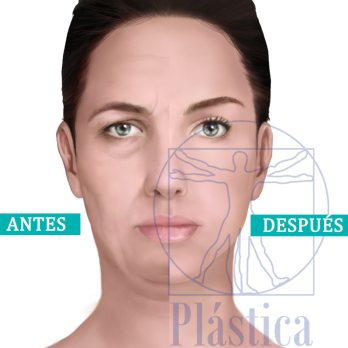 Perfilamiento facial mujer