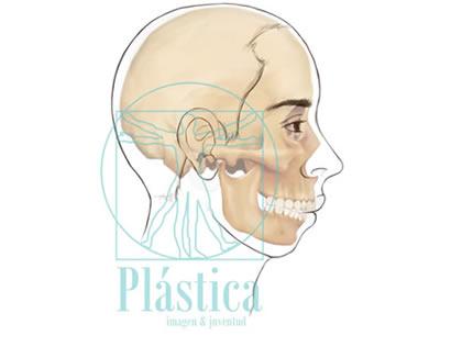 Prognatismo hueso maxilar