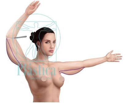 Lifting brazos de exceso de grasa